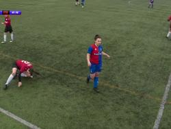 Футболистка по ходу матча вправила себе колено и продолжила игру